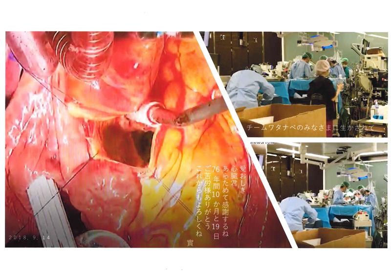 大動脈弁狭窄症 自己心膜使用大動脈弁形成術 碓井實 様